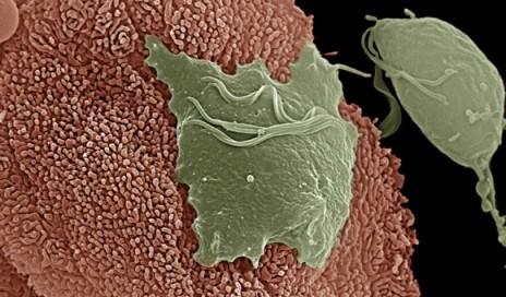 阴道毛滴虫寄生虫。