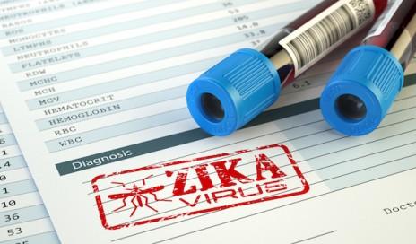 stockart_Zika