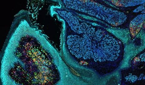 徕卡生物系统Melanoma_crop957x561p PDL1工具包