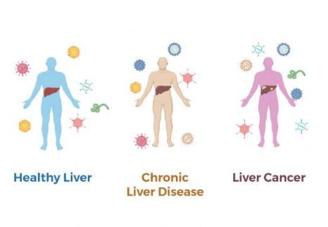 病毒签名测试肝癌筛查
