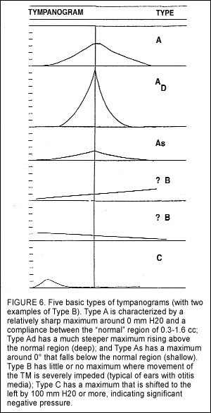Basic Tympanometry in the Dispensing Office - Hearing Review
