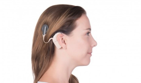 Remote care for cochlear implants