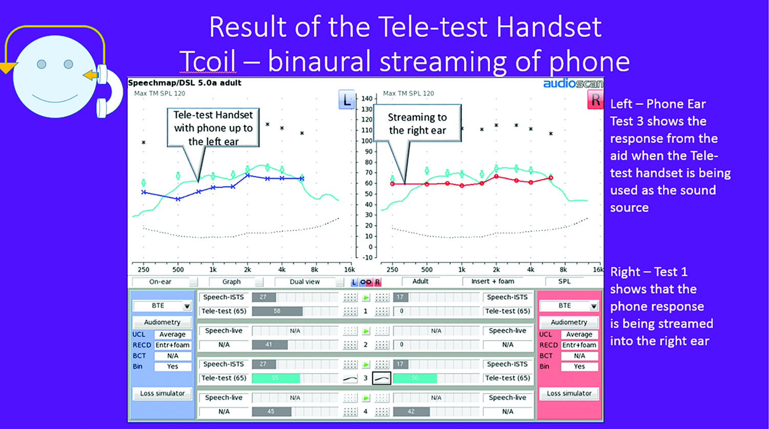 Verifying Telephone Programs In Hearing Aids This Gives You The Usual Tele Sounds First Three Positions But Binaural Rem Measure With Test Handset Streaming