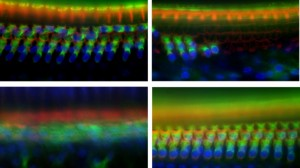 Upper left: Inner hair cells (orange row at top) and outer hair cells (blue/green array at bottom) in the cochlea of mice lacking the Tmtc4 gene, 10 days after birth. Upper right: Substantial decrease, through cell death, of both types of hair cells, 30 days after birth. Bottom left: 45 days after birth, no hair cells remain. Bottom right: For comparison, outer hair cells in a normal mouse 30 days after birth. Credit: Sherr and Chan labs/UCSF.