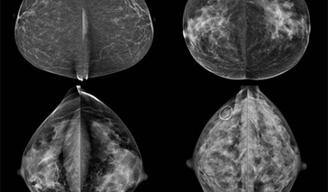 Four different categories of breast density: fatty (top left), scattered fibroglandular (top right), heterogeneously dense (bottom left) and extremely dense (bottom right).