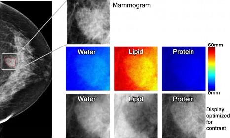 Mri breast cad imaging economics