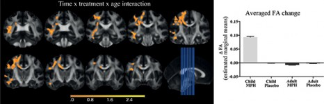 Brain Imaging Reveals Adhd As >> Mri Shows Adhd Medication May Affect Brain Development In Children