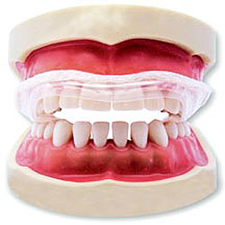 Functional Appliances Orthodontic Products
