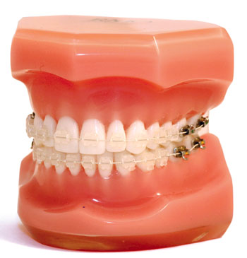 Aesthetic Archwires - Orthodontic Products