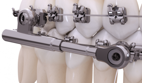 functional appliances archives orthodontic products
