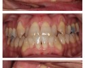 Figure 1: Pretreatment of skeletal/dental Class III malocclusion treated nonsurgically.