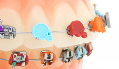 Wire Braces   Wire Archives Orthodontic Products