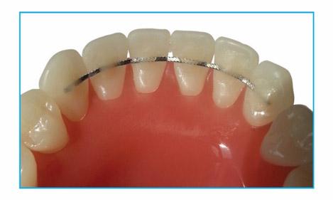 Wondrous Db Orthodontics Now Offers Nickel Free Straight 8 Lingual Retainer Wire Wiring Database Gramgelartorg