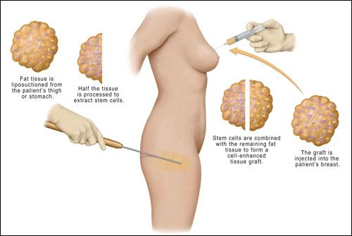 Latest breast enlargement techniques