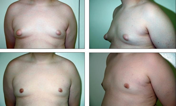 male breasts disorder