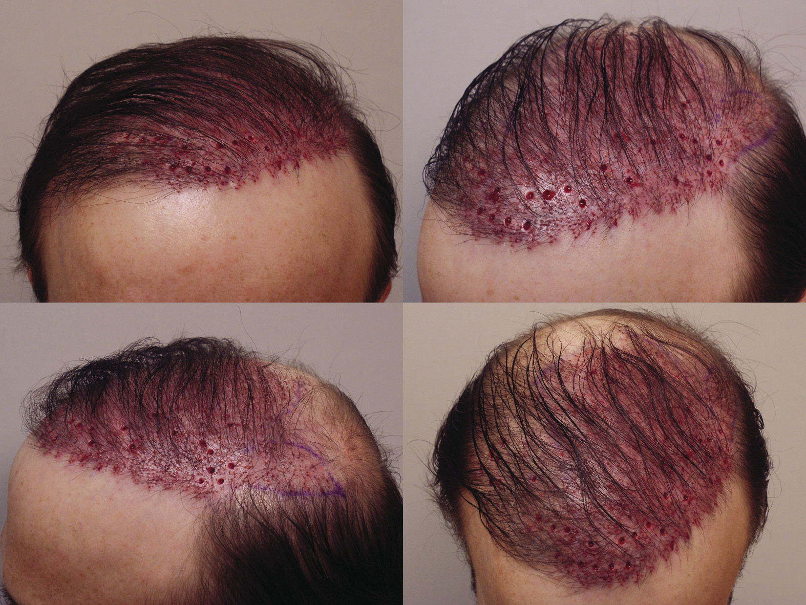 Inpractice Breaking Bald Plastic Surgery Practice