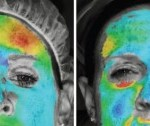 Software visually maps horizontal movement of the face. (Left) Before injection, the light blue in the center indicates compression of the skin between the eyebrows and above the nose. (Right) Two weeks after injection. The new colors show decreased compression.
