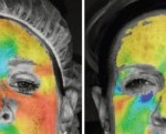 Software highlights vertical motion. (Left) Before injection, the forehead shows increased stretch. (Right) After injection, stretch of the forehead is decreased as evidenced by the light blue color being replaced with yellow.