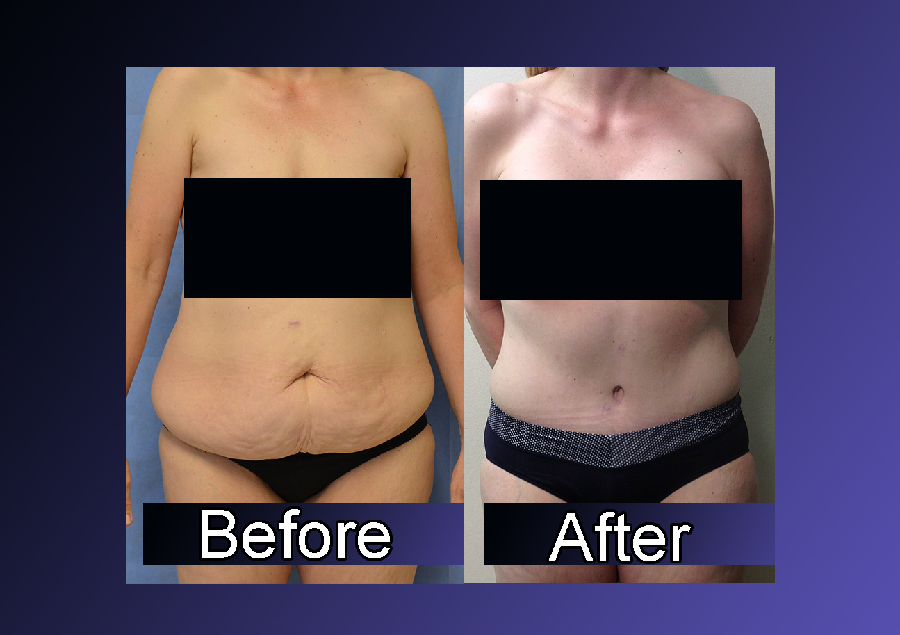 Video Bariatric Surgery Fuels Increase In Body Contouring