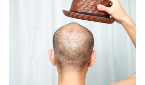 http://www.dreamstime.com/royalty-free-stock-photo-bald-man-hat-concept-shot-hair-cair-image44453105