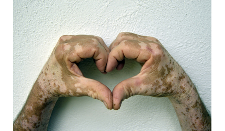 http://www.dreamstime.com/stock-image-hand-vitiligo-conditions-forearm-man-condition-skin-hands-arms-making-shape-heart-image64780301