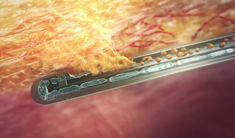 tissue fat Breast