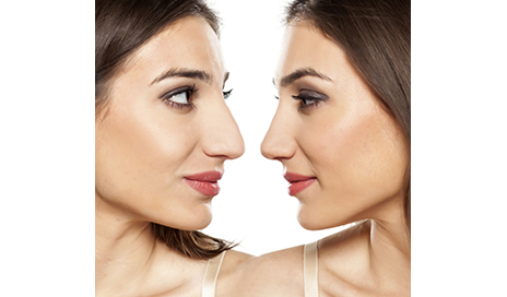 http://www.dreamstime.com/royalty-free-stock-images-rhinoplasty-comparative-portrait-beautiful-young-woman-image69912029