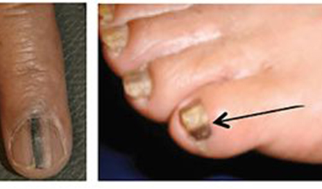 Nail Cancer Is Real, Miss Illinois Karolina Jasko Had This Type Of ...