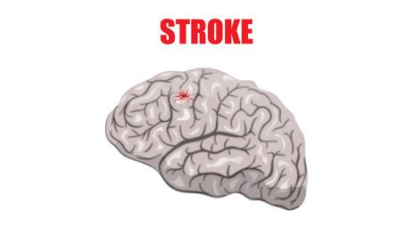 http://www.dreamstime.com/stock-images-stroke-illustration-hemorrhagic-image60905264