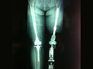 Photo source: amputeeimplantdevices.com