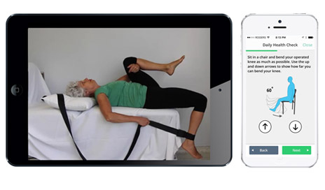myHip&Knee is a free app that aims to help patients self-manage their recovery after joint replacement. (Image from manufacturer's website.)