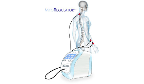 [WEB PAGE] Results from MyoRegulator for Spasticity Trial Published