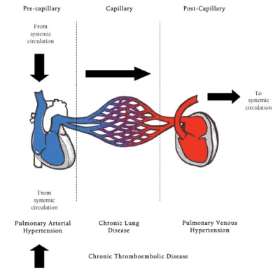 Cpap for pulmonary hypertension