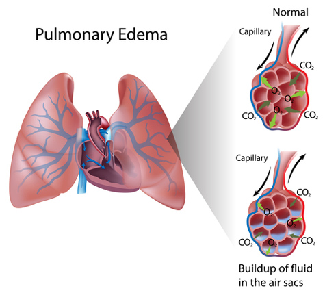 Pulmonary Edema Can Cause Lungs To Pump Fluids In Not Out Rt For