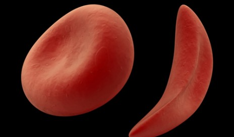 3-D rendering of a healthy red blood cell and one afflicted with sickle cell disease