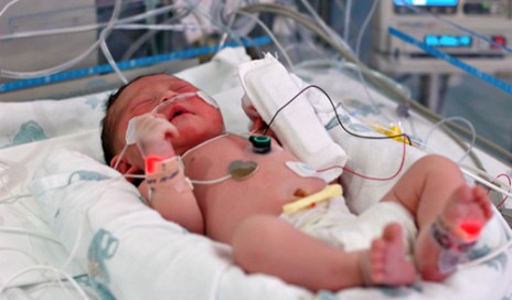 Infant in the intensive care unit