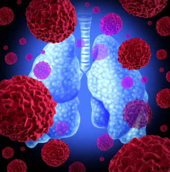 a new noninvasive sputum based respiratory mucus test may help determine if a lung nodule is malignant or benign and aid in the early detection of lung