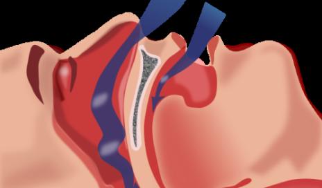 Atrial fibrillation recurrence lower with sleep apnea treatment