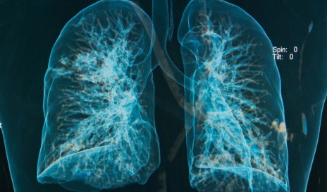 3d lung image