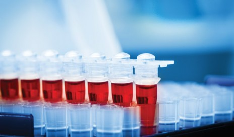 blood-gas-vials-sample-500