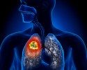 lung cancer target