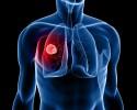 lung cancer circadian rhythm
