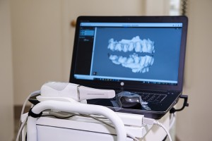 intraoral scanner laptop