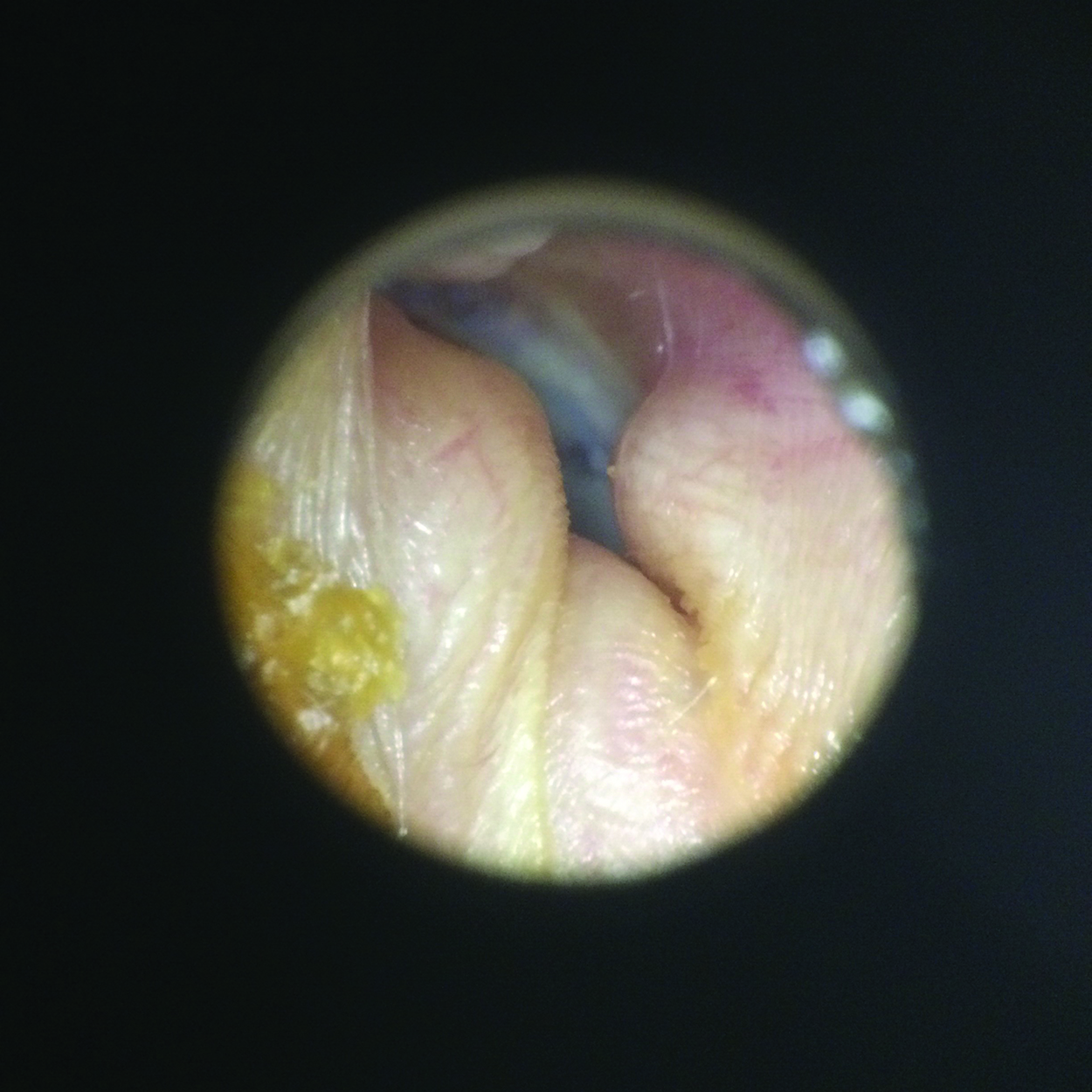 Pictures Of Growths On Outer Ear