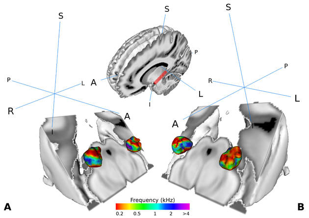 Speech Processing is Complex Before Reaching Cerebral Cortex