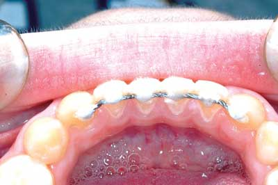 Fixed Retention - Orthodontic Products