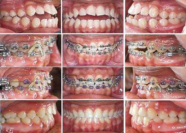 Open Bite Correction Orthodontic Products