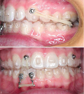 Aesthetic Advances - Orthodontic Products