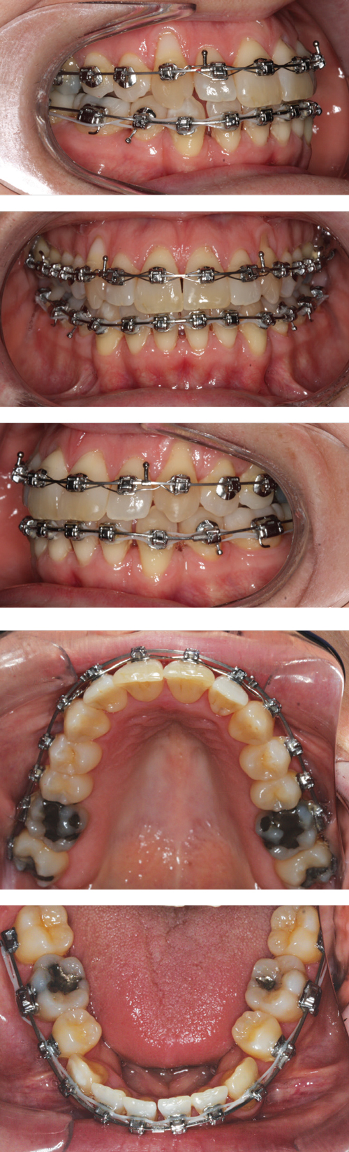 A Case For Extractions Orthodontic Products