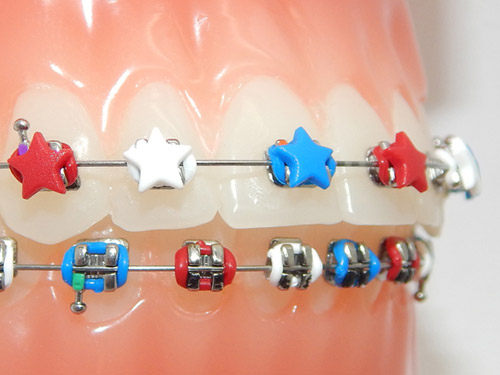 G&H Orthodontics Offers Red, White, and Blue DesignerTies